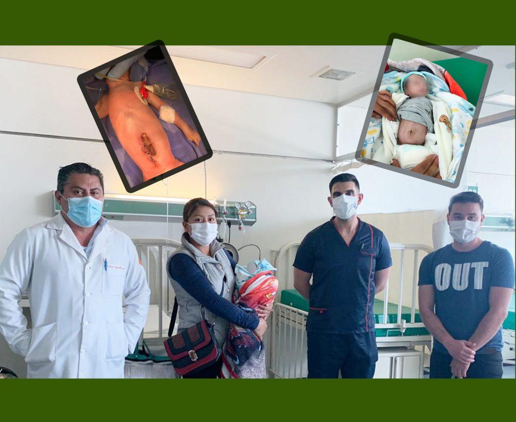 Atiende IMSS de Irapuato caso de menor con intestinos expuestos; salvan su vida y la de su madre